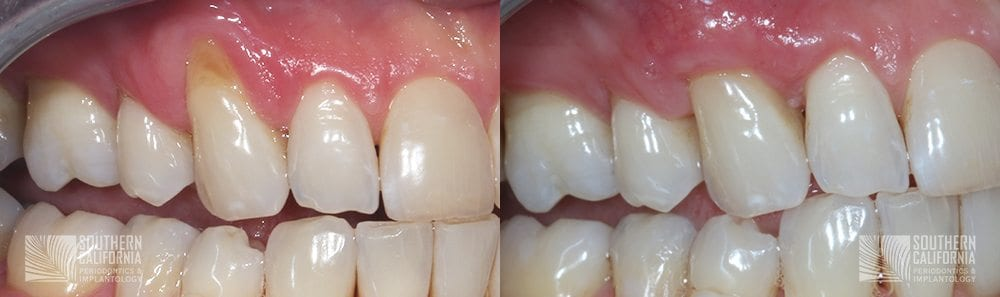 Before and After Gum Graft Patient 3