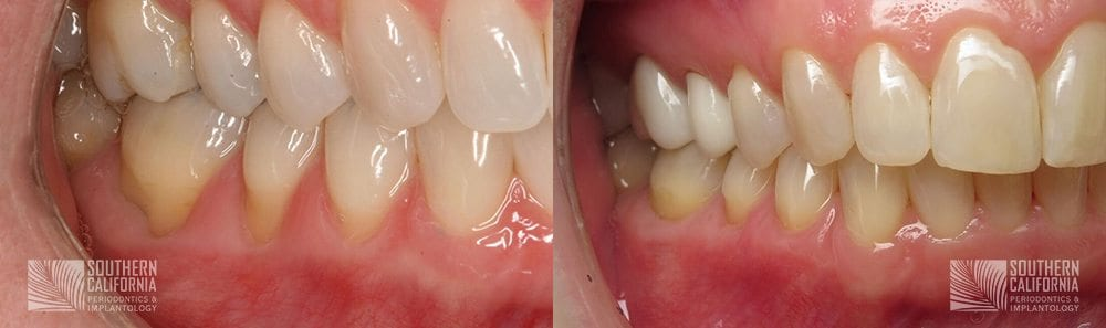 Before and After Gum Graft Patient 6