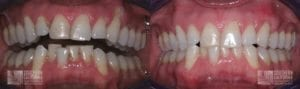 Before and After Gum Graft Patient 9a