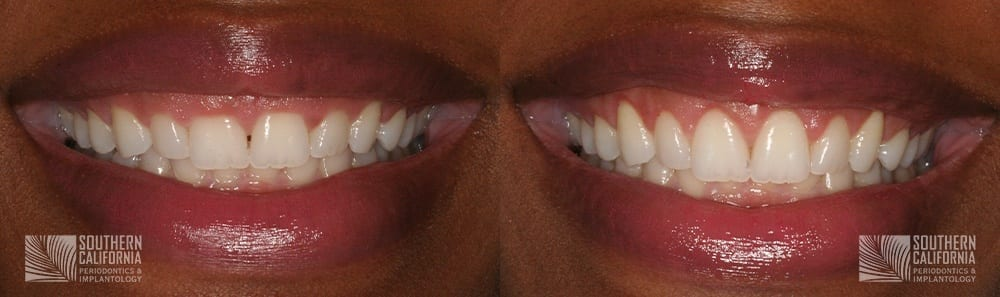 Before and After Crown Lengthening 3.1
