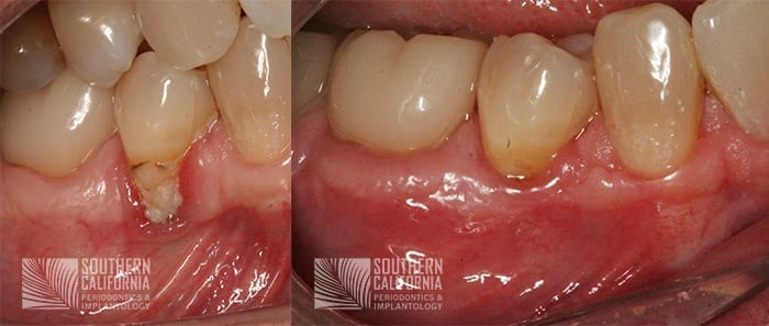 Before and After Gum Graft 10