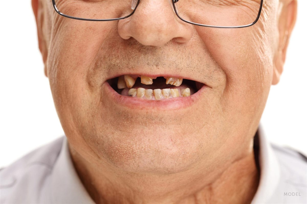 Close Up of Old Man with Missing and Chipped Teeth